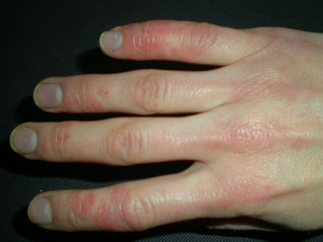 Raynaud's Disease (Hand)